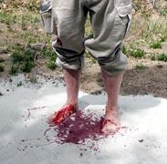 BloodFeet.jpg